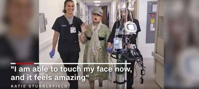 В США 21-летней девушке пересадили новое лицо